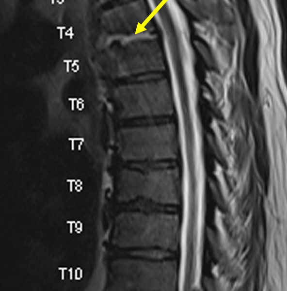 B. Sagittal T2 TSE image at the same level as (A) shows heterogeneous signal within the T4 and T5 vertebral bodies and T4-5 disc space (arrow), and endplate erosion.
