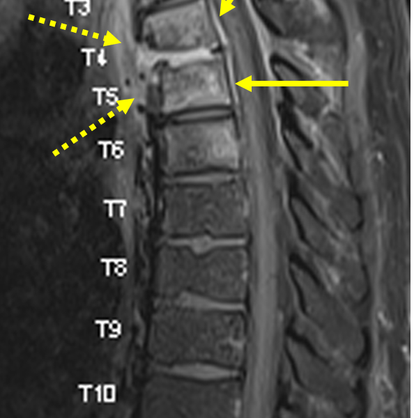 C. Sagittal T1 TSE fat saturated image with contrast at the same level as (A) shows enhancement of the T4-T6 vertebral bodies and the T4-5 disc space. There is also smooth, linear enhancement of the epidural space (arrows), consistent with a spinal epidural abscess. The anterior paraspinal phlegmon also enhances (dashed arrows).