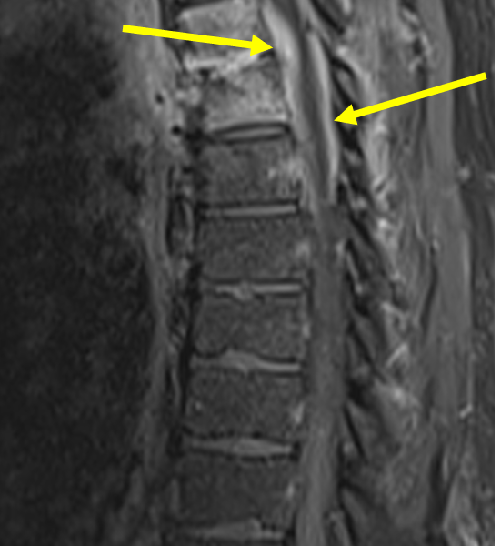 D. Sagittal T1 TSE fat saturated image with contrast at a level lateral to (A) shows the enhancing abscess extending into the anterior and posterior epidural spaces (arrows), wrapping around the thoracic cord from T4 down through T6.