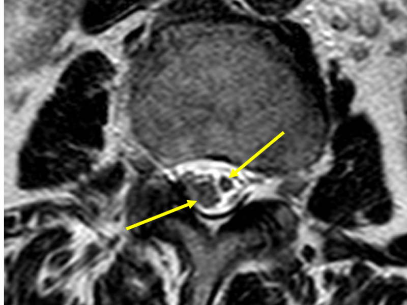 C. Axial DISC T2 image at a level inferior to (B) shows asymmetric splitting of the spinal cord (arrows), consistent with type 2 diastematomyelia (i.e., single dural sac containing both hemicords and no bony septum).