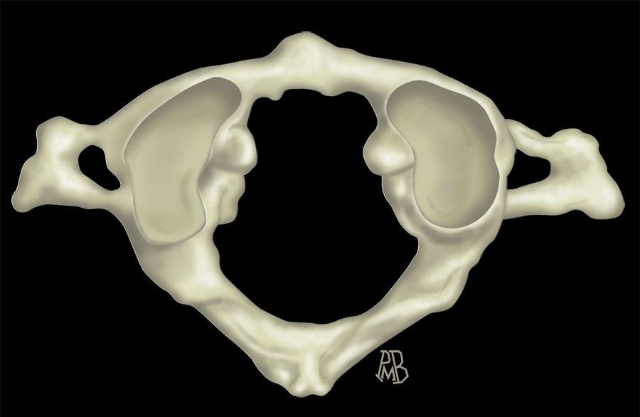 MRI Mastery Series: Spine