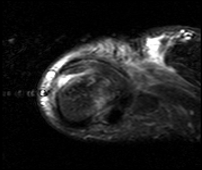 stener thumb mriStener lesion diagram